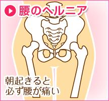腰のヘルニア